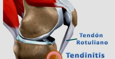 Tendinitis rotuliana - Salud